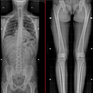 scheletro in toto