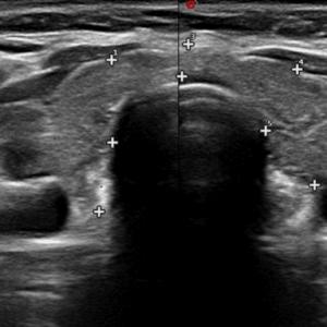 Ecografia tiroide