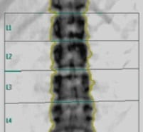 MOC dexa colonna lombare