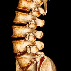 colonna lombare
