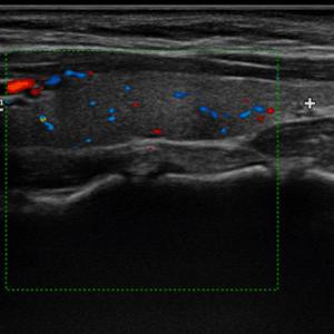 eco color doppler tiroide