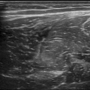 ecografia muscolare