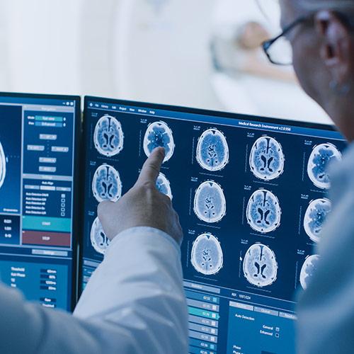 check-up neurovascolare